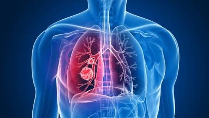 En çok görülen Akciğer Hastalığı: KOAH